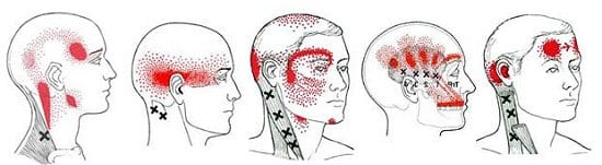 headache neck pain cervicogenic